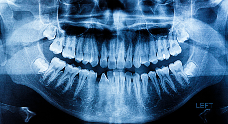 dental x ray in Anderson